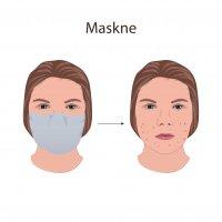 HELP, een onrustige huid door het mondmasker
