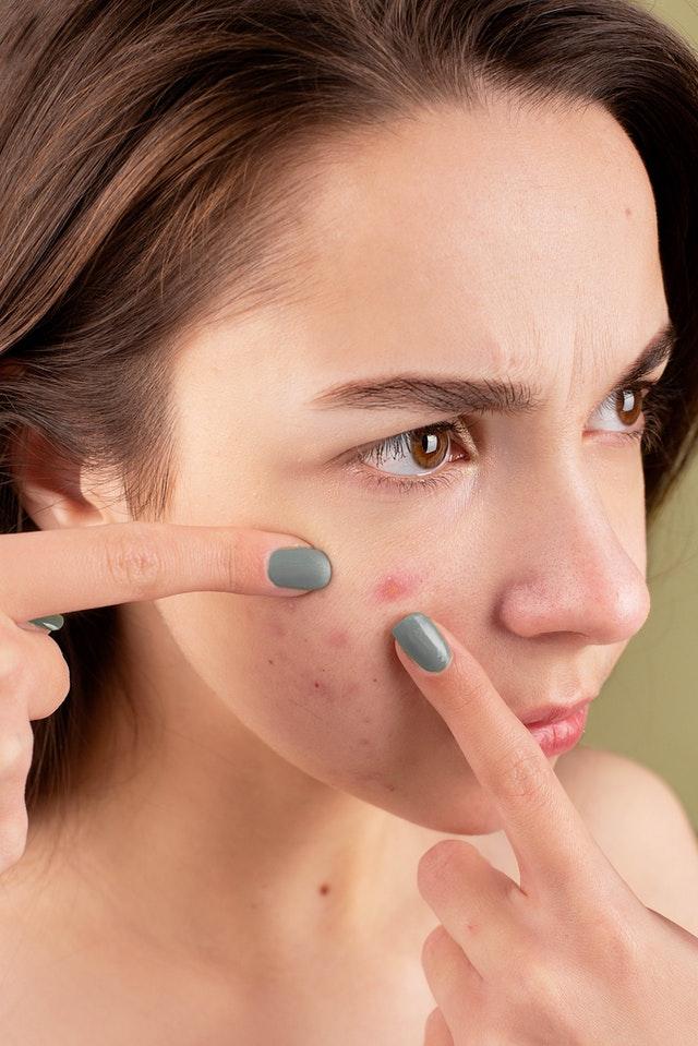 dermatoloog vormen van acne iconic elements comedonen cyste puisten acne